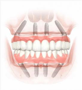 allo-on-4 fogasztai implantatum