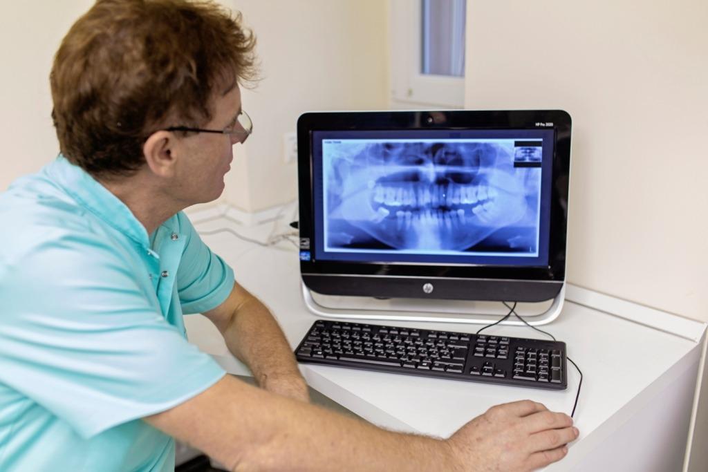 Fogászati röntgen kiértékelése